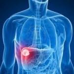 รักษามะเร็ง : น้ำมันสกัดเย็น ช่วยโรคมะเร็ง